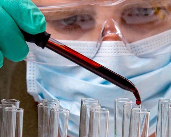 Estudiar curso hematología en análisis clínico