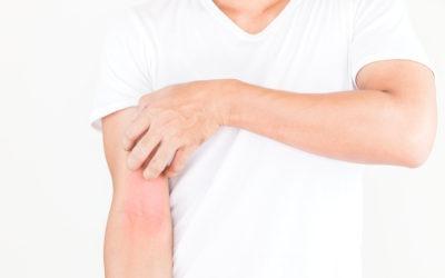 Patologías dermatológicas: las más comunes